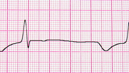 close-up of ecg graph